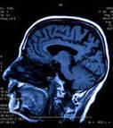 Le stress change la manière dont fonctionne notre cerveau | Fonctionnement du cerveau & états de conscience avancés | Scoop.it