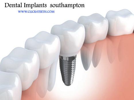 Dental implants Cost In southampton | rejdeep7830 | Scoop.it