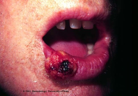 Lip Cancer risk for those on Blood Pressure Meds | Heart and Vascular Health | Scoop.it