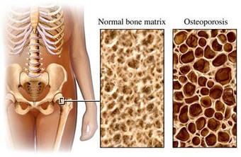 Pérdida de densidad ósea en niños celíacos | Ce... | Gluten free! | Scoop.it