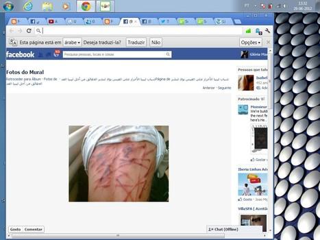 21 AMNESIA By ICC UN Amnesty HRW Int. Comunity Media In Face of Libya-n Rebels & NATO Crimes #FreeSaif #Saif | Seif al Islam al Gaddafi | Scoop.it