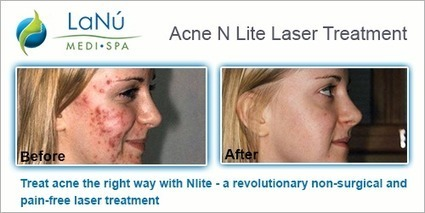 Get Effective Treatments and Fab Results for Acne and Veins Removal | Laser & Medi Treatments | Scoop.it