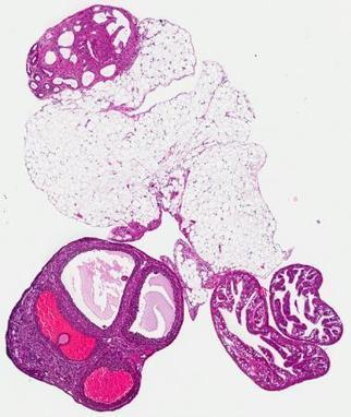 Study Proposes New Ovarian Cancer Targets - Drug Discovery & Development   New drug targets   Scoop.it