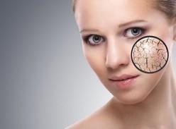 How to Remove Dark Circles | dubai cosmetic surgery | Scoop.it