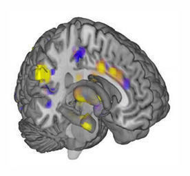 First Objective Measure of Pain Discovered in Brain Scan Patterns | Mom Psych | Scoop.it