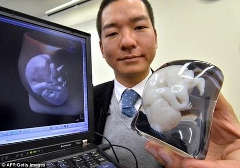 12 expertos en impresión 3D explican cómo cambiará nuestras vidas esta tecnología | Toyoutome | eSalud Social Media | Scoop.it