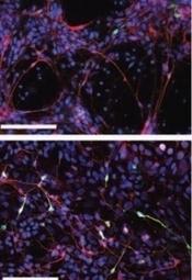 Actu santé : AUTISME: Des neurones cultivés à partir de cellules de peau livrent de nouveaux indices | Autisme actu | Scoop.it