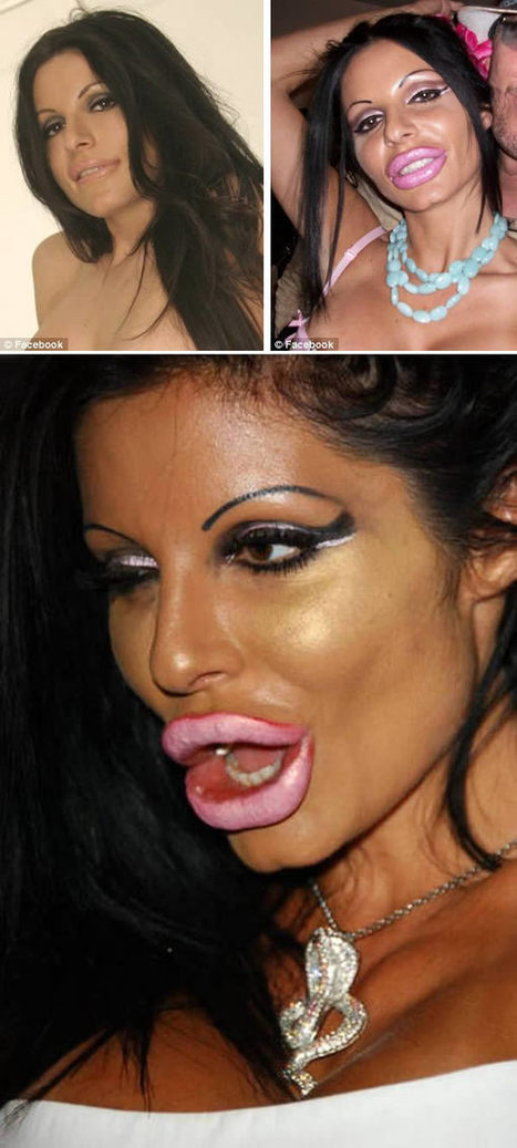 Plastic Surgery Fails: 8 Lip Enhancements Gone Wrong | Strange days indeed... | Scoop.it