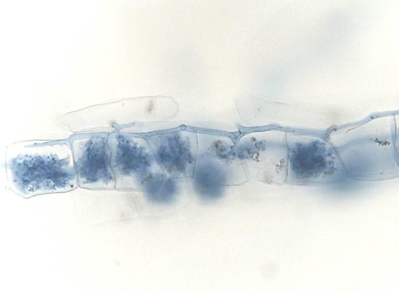 Plant-microbe interaction