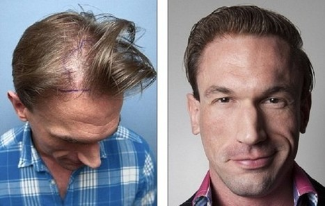 Dr Christian Jessen Hair Transplant