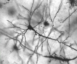 Alzheimer's plaques disrupt brain networks | Psychology and Brain News | Scoop.it