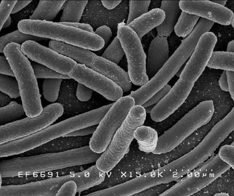 Wow of the week: With a little bioengineering, E. coli becomes a pathogen-fighting superhero | SynBioFromLeukipposInstitute | Scoop.it