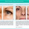 skin care tengue