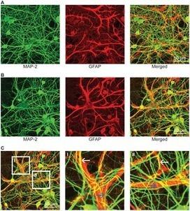 Towards Neuronal Organoids: A Method for Long-Term Culturing of High-Density Hippocampal Neurons [openaccess] | Neuroscience_technics | Scoop.it