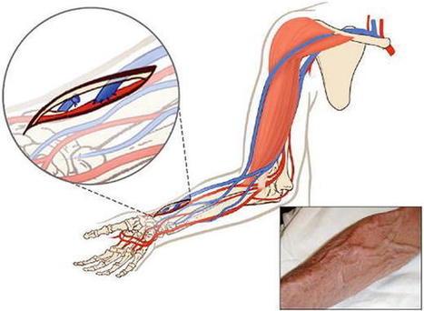 Codigo penal comentado y anotado parte general atlas of vascular anatomy an angiographic approach free downloadrar fandeluxe Image collections