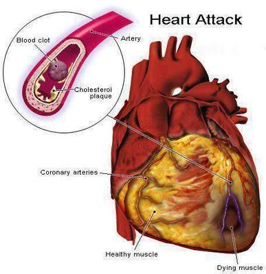 Heart Disease - Tips Guide And Advice   Flossing & Health   Scoop.it