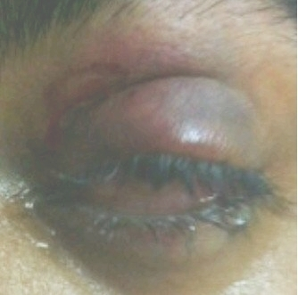 EYE Injury in BaniJamra 8/11/2011 - Birdshot! | Human Rights and the Will to be free | Scoop.it
