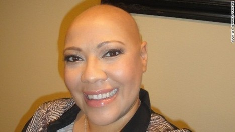 How it feels to be a bald woman - CNN | Innovative Woman | Scoop.it