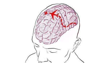 Plasticidad a la carta para salvar cerebros   Acción positiva: #Alternativas   Scoop.it
