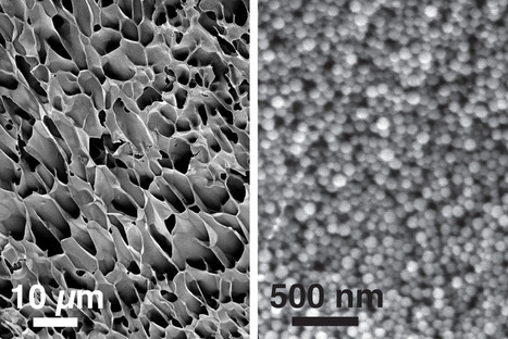 Injected into the body, self-healing nanogel acts as customized long-term drug supply   KurzweilAI   Longevity science   Scoop.it