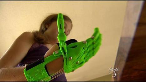 11-jarig meisje print handprothese | 3D and 4D PRINTING | Scoop.it