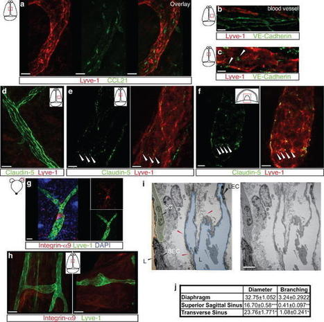 Structural and functional features of central nervous system lymphatics | Immunology for University Students | Scoop.it
