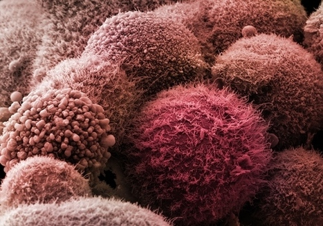 Cancer reproducibility project releases first results | Melanoma BRAF Inhibitors Review | Scoop.it