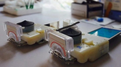 Sia Lab Has Designed a $34 Medical Lab Dongle for Smartphones | Raspberry Pi | Scoop.it