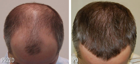 Understanding Hair Loss – Causes and Available Treatments | Diseases and Conditions | Scoop.it