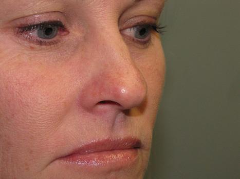 Actinic Keratosis Treatment, Symptoms, Causes,