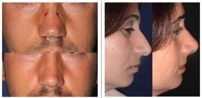 Sollevamento della punta del naso con filo elastico (Rinowire™)   Medicina estetica   Scoop.it