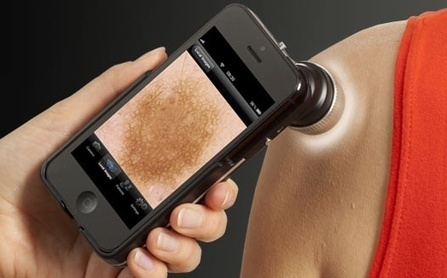 iDoc24 study finds smartphone-enabled dermatology screening more efficient for referrals | mobihealthnews | Salud Publica | Scoop.it