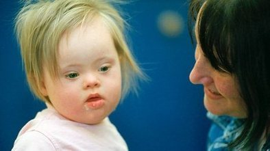 Genetic advance in Down's syndrome | Health Studies Updates | Scoop.it