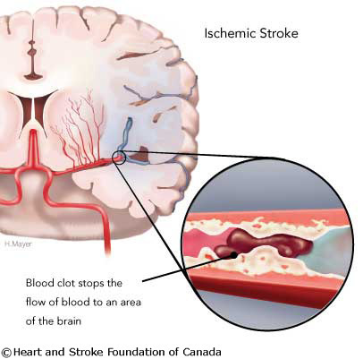 What to Know – and Do! – About Stroke | Heart and Vascular Health | Scoop.it