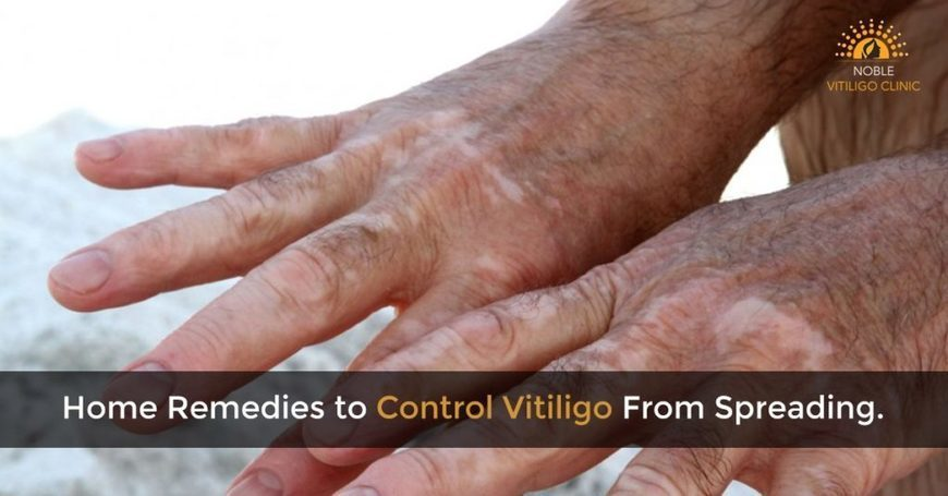 Home Remedies To Control Vitiligo From Spreadin