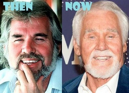 Kenny Rogers Plastic Surgery Before And After P