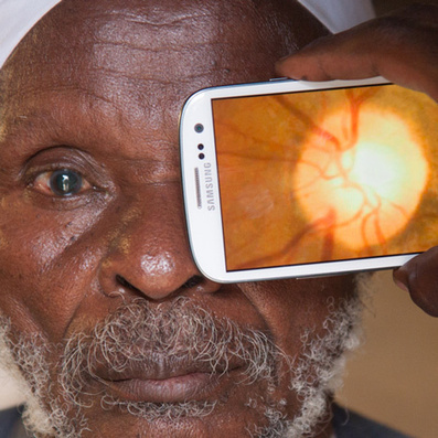 Peek smartphone adapter and app maps eyes to prevent blindness   ECE Student Projects Inspiration and Creation   Scoop.it
