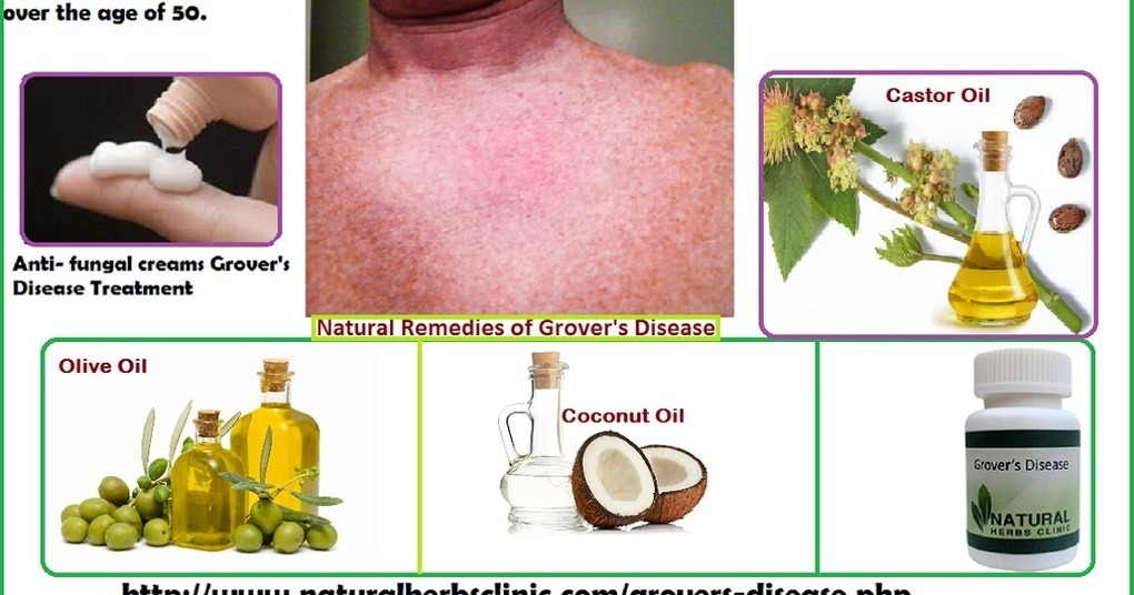 Grover's Disease Natural Remedies | Natural Her