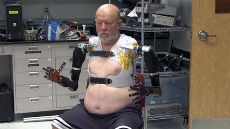 Double amputee controls two prosthetic arms at once, using just his mind   Interesting Reading to learn English -intermediate - advanced (B1, B2, C1,)   Scoop.it