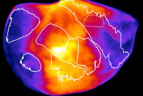 New 'camera' produces panoramic images of brain activity | Krylbo en del av europa | Scoop.it