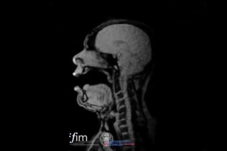 Incredible MRI Images Show What An Opera Singer Looks Like On The Inside While Singing | La voix dans toutes ses dimensions | Scoop.it