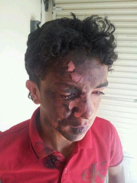 Bahrain:  Nabieh Saleh, a youth attacked by SF's while playing football | Human Rights and the Will to be free | Scoop.it