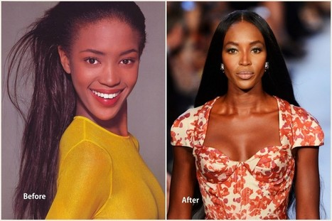 Naomi Campbell Plastic Surgery Before and After...