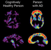 Genome-Wide Imaging Study Identifies New Gene Associated with Alzheimer's Plaques | Neuroscience and Psychology | Scoop.it