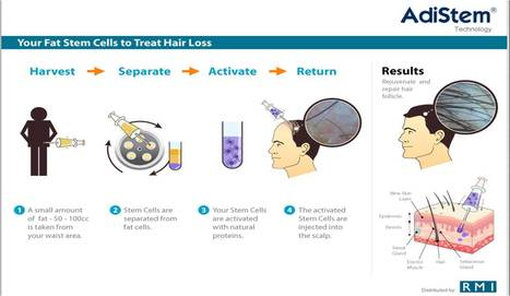 Get Rid From Hair Loss Using Stem Cell Therapy