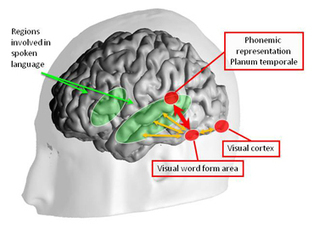 Inside the Letterbox: How Literacy Transforms the Human Brain - Dana Foundation   Learning Disabilities Digest   Scoop.it