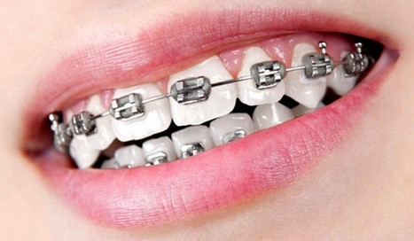 Teeth Braces Cost In Pune In Bhakti Scoop It