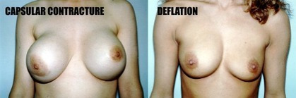 Natural Breast Enhancement versus Breast Augmentation Surgery: Which Should You Choose? | Look Great Naked... | Scoop.it