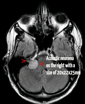 Acoustic Neuroma Explained – Symptoms, Treatments and Surgery | Diseases and Conditions | Scoop.it