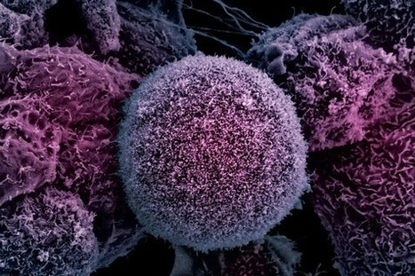 Mainstream Science Finally Admits Vitamin C's Ability to Cure Cancer is Not a Conspiracy Theory   Global politics   Scoop.it